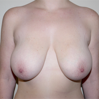 25-34 year old woman treated with Breast Reduction before 3282906