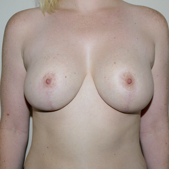 25-34 year old woman treated with Breast Reduction after 3282906