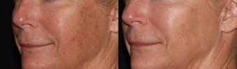 35-44 year old woman treated with Jessner Peel before 3748773