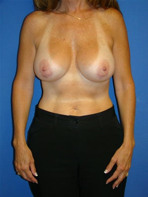 Breast Augmentation Surgery after 112639