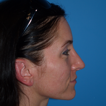 25-34 year old woman treated with Rhinoplasty after 3323937