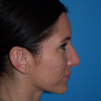 25-34 year old woman treated with Rhinoplasty before 3323937