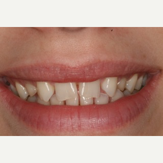 25-34 year old woman treated with Porcelain Veneers before 3094663