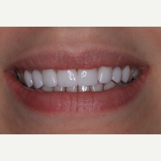 25-34 year old woman treated with Porcelain Veneers after 3094663