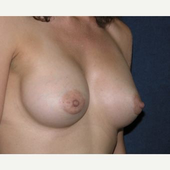 35-44 year old woman treated with Breast Augmentation after 3454859