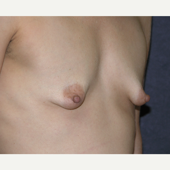 35-44 year old woman treated with Breast Augmentation before 3454859