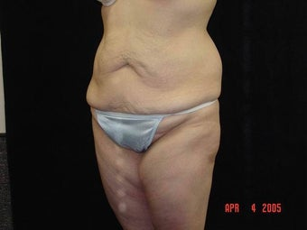 Body Lift with Liposuction of Abdomen, Waist, Flanks 203454