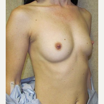 Woman treated with Sientra Breast Implants before 3163490