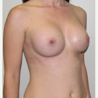 Woman treated with Sientra Breast Implants after 3163490