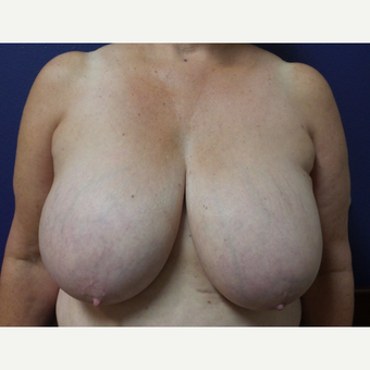 55-64 year old woman treated with Breast Reduction before 3195801