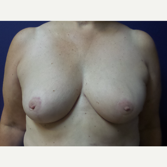 55-64 year old woman treated with Breast Reduction after 3195801