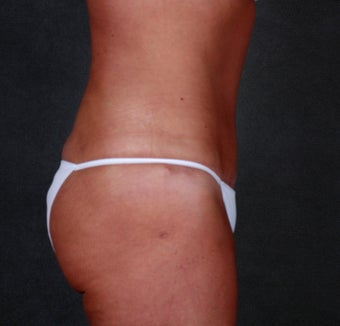 Tummy Tuck with Liposuction after 1057118