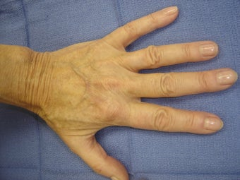 Hand Veins before 977045