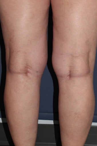 62 year old female treated with Sclerotherapy for Leg Veins after 986681