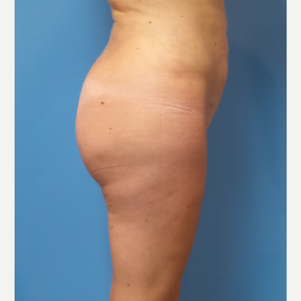 35 old woman treated with Brazilian Butt Lift after 3506609