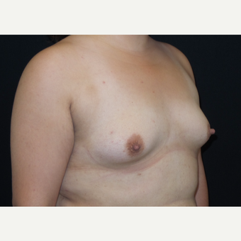 25-34 year old woman treated with Breast Augmentation before 3182011