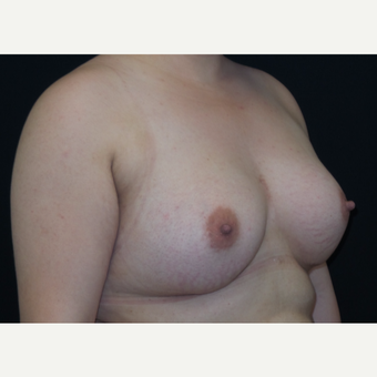 25-34 year old woman treated with Breast Augmentation after 3182011