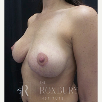35-44 year old woman treated with Breast Lift after 3844335