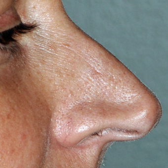 45-54 year old woman treated with Rhinoplasty before 3173413