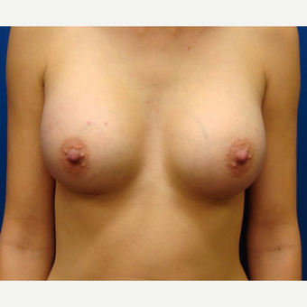 18-24 year old woman treated with Breast Implants after 3669995
