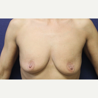 45-54 year old woman treated with Breast Lift with Implants before 3651642