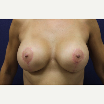45-54 year old woman treated with Breast Lift with Implants after 3651642