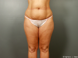 Tummy Tuck before 1384840