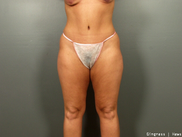 Tummy Tuck after 1384840