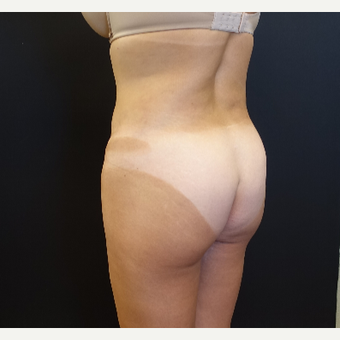 35-44 year old woman treated with Brazilian Butt Lift Revision before 3234467