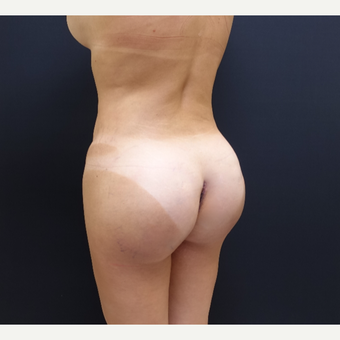 35-44 year old woman treated with Brazilian Butt Lift Revision after 3234467