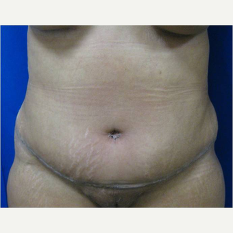 49 year old woman treated with Tummy Tuck after 3726787