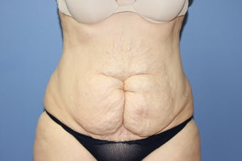 53 year-old woman with previous C section scar treated with abdominoplasty before 1516260