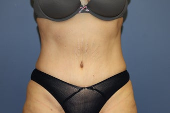 53 year-old woman with previous C section scar treated with abdominoplasty after 1516260