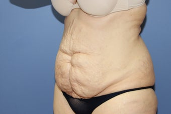 53 year-old woman with previous C section scar treated with abdominoplasty 1516260