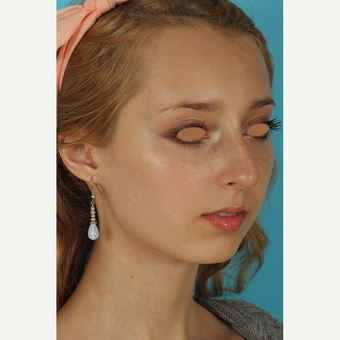 25-34 year old woman treated with Rhinoplasty before 3628963