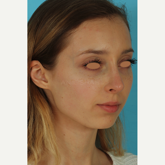 25-34 year old woman treated with Rhinoplasty after 3628963