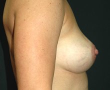 Breast Implants after 3545057