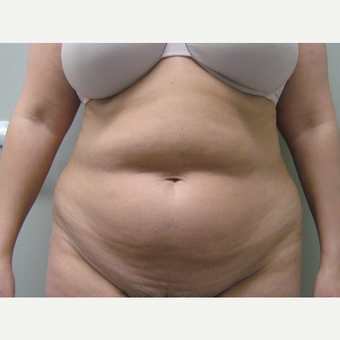 35-44 year old woman treated with Tummy Tuck before 3226437