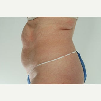 41 year old woman treated with CoolSculpting 1661692