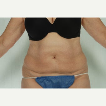 41 year old woman treated with CoolSculpting after 1661692