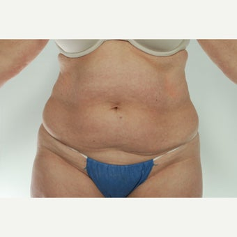 41 year old woman treated with CoolSculpting before 1661692