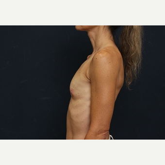 25-34 year old woman treated with Breast Augmentation before 3344090