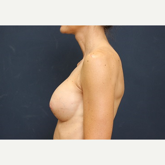 25-34 year old woman treated with Breast Augmentation after 3344090
