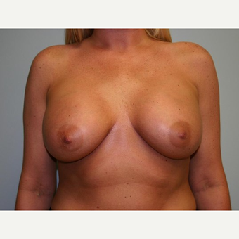 Breast Augmentation after 3560718