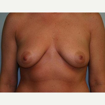 Breast Augmentation before 3560718
