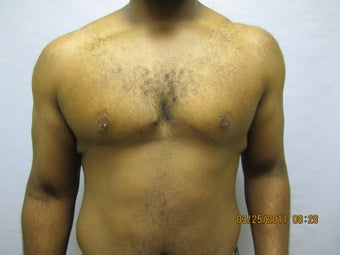 34 y.o man with breast reduction after 1005234