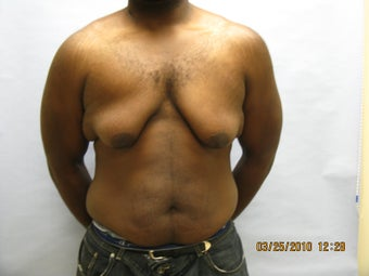 34 y.o man with breast reduction before 1005234