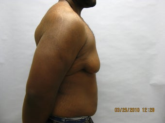 34 y.o man with breast reduction 1005234
