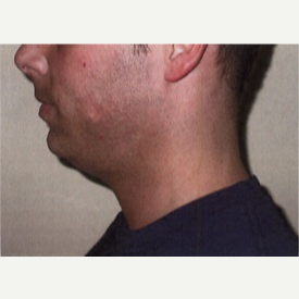 25-34 year old man treated with Chin Implant before 3065752