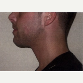 25-34 year old man treated with Chin Implant after 3065752